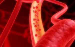 Ученые нашли 6 новых генов, ответственных за возникновение диабета 2 типа