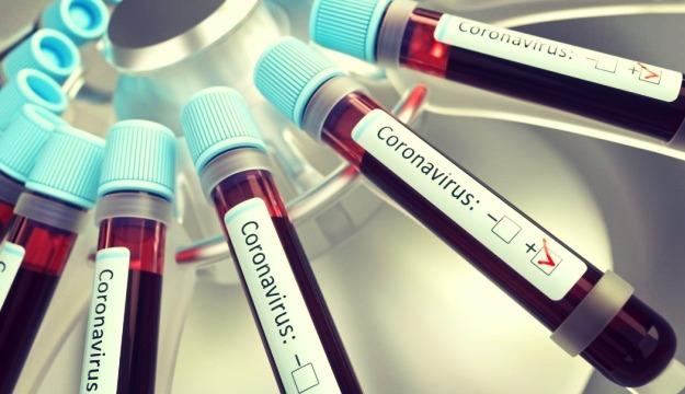 Во Владимирской области умер пациент с коронавирусной инфекцией