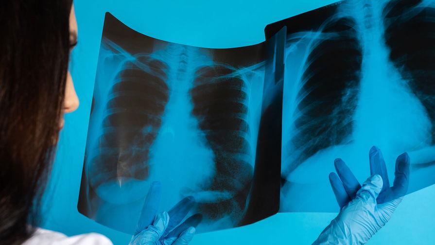В Сингапуре создали систему тестирования на коронавирус через дыхание