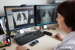 Онколог: в России стало больше больных раком среди молодежи